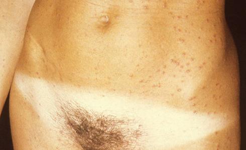 симптомы сифилиса фото
