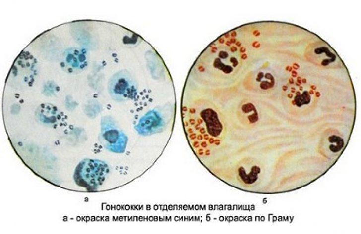 kakaya-kishechnaya-palochka-mozhet-vizvat-vaginalnoe-vospalenie