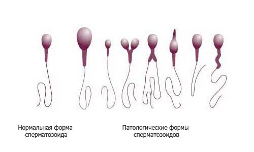 Normalnyie-i-patologicheskie-formyi-spermatozoidov (1)