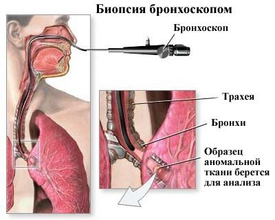 biopsiya-bronkhoskopom