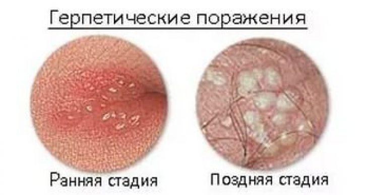Генитальный герпес у мужчин: симптомы лечение, как выглядит половой герпес у мужчин