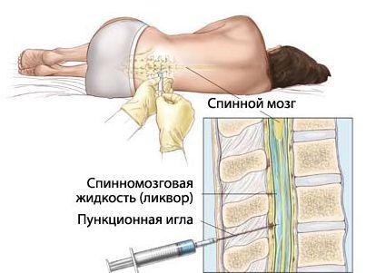 otkuda-berut-punkciju-kostnogo-mozga (1)