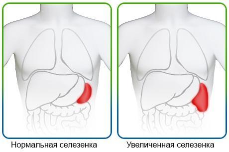 uvelicheniye-selezenki