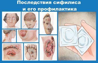 venericheskie-zabolevanija-i-ih-simptomy_1 (1)