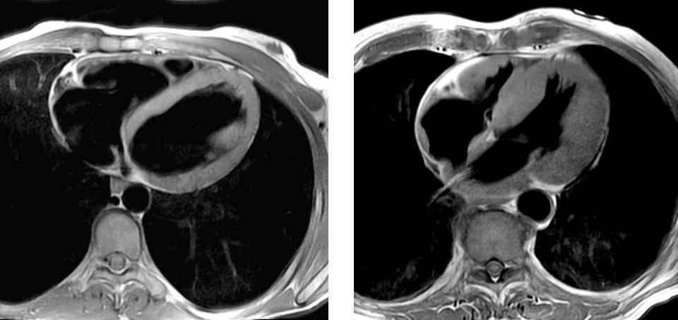Rezultaty-obsledovaniya-MRT-serdtsa