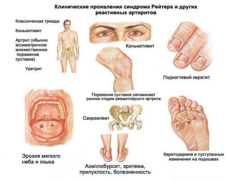 Где болят суставы при хламидиозе хламидии: удар по суставам