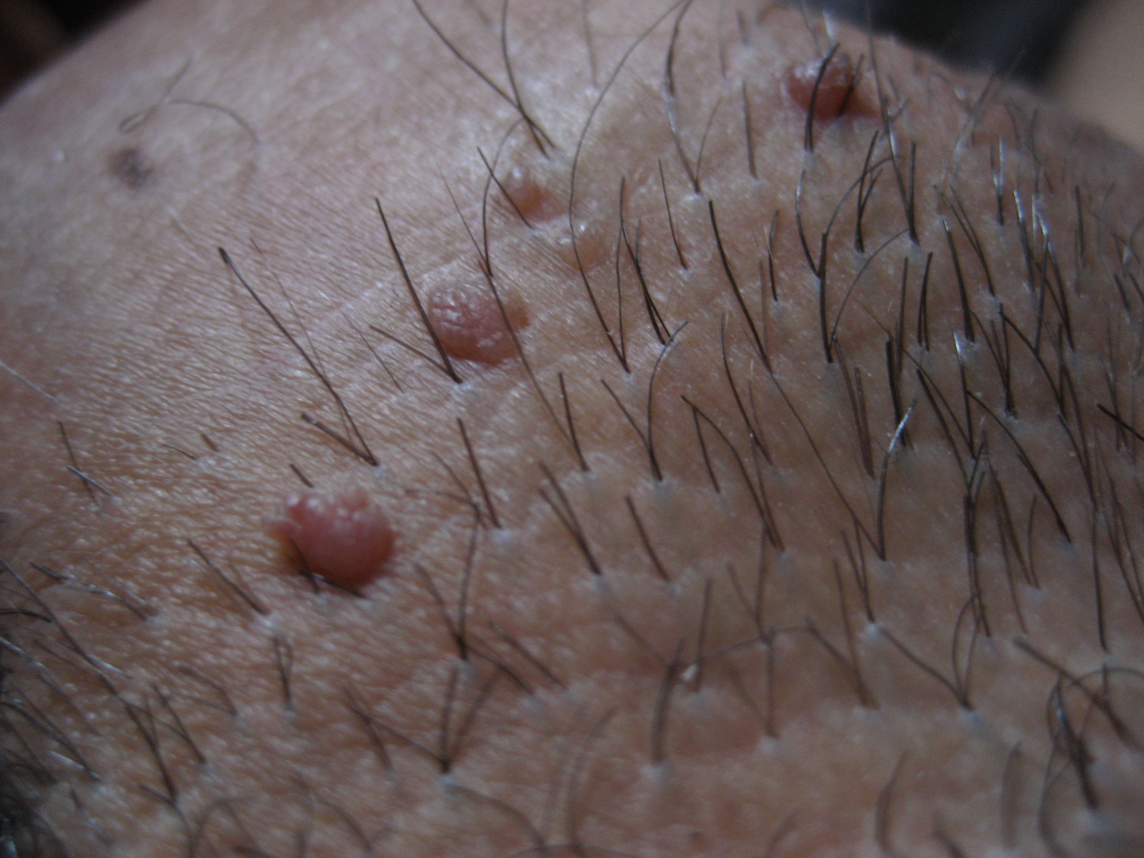 Удаление бородавок в интимных местах у мужчин