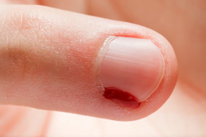 Оторвала заусенец на ноге болит палец что делать 3