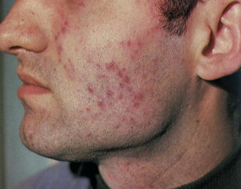 фото разновидностей дерматозов кожи