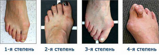 osteoartroz-simp-3
