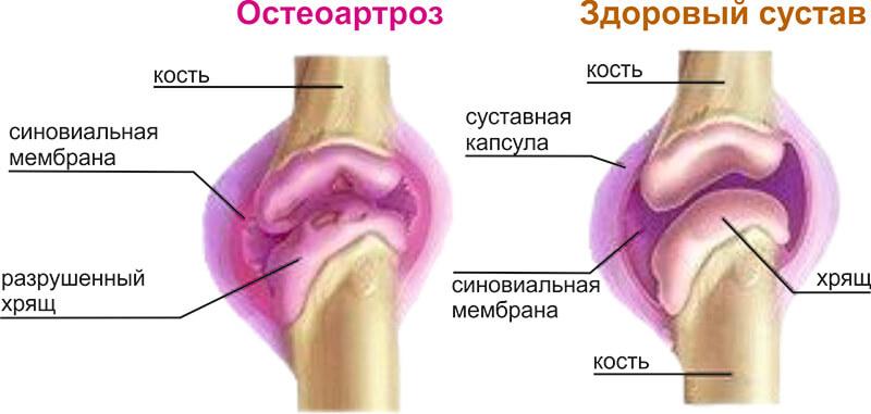 osteoartroz