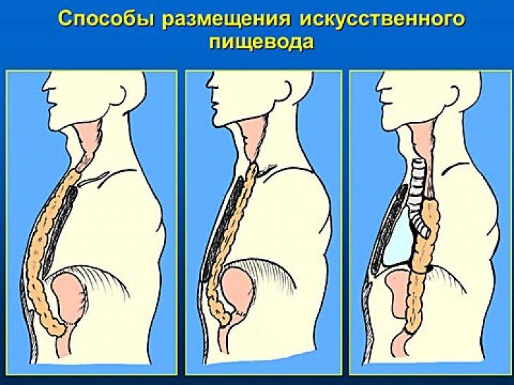 Что делать при травме пищевода 113