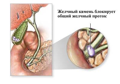 Непроходимость желчных путей симптомы