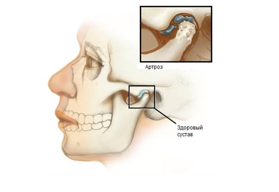 Щелканье в суставе нижней челюсти клиника сосудов и суставов
