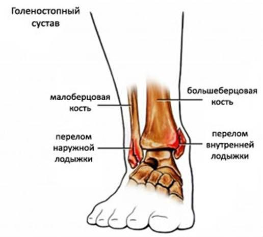 симптомы трещины суставов кисти