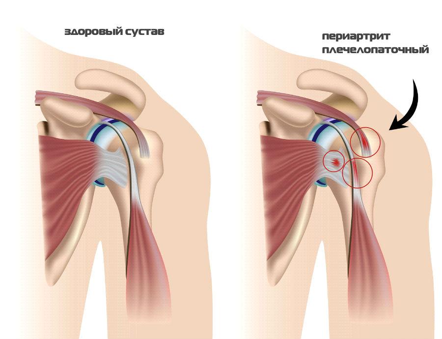 Может ли подскочить давление при шейном остеохондрозе
