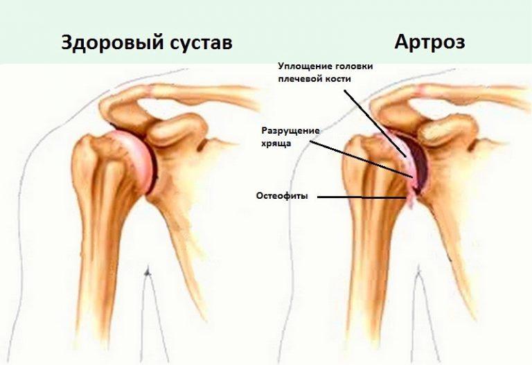 Резь в плечевом суставе обезболивающее суставной боли