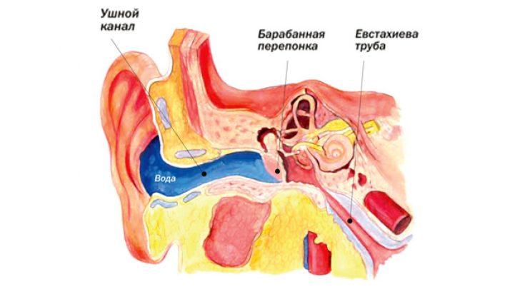 того, что ребенку попала вода в уши на море антистатические показатели