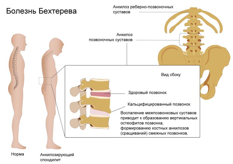 Эндогенные суставы что делать при ушибе голеностопного сустава
