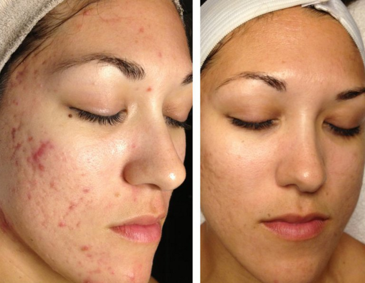 Как отшелушивать кожу в домашних условиях 101