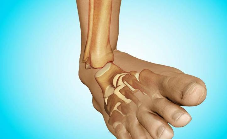 лечение артрита голеностопных суставов у детей