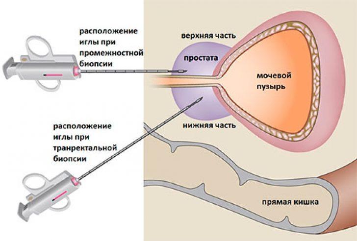 Сколько делается биопсия предстательной железы
