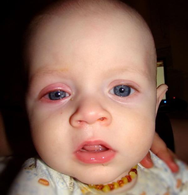 Конъюнктивит симптомы у взрослых лечение в домашних условиях 92