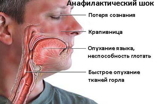 аллергия на укусы на коже