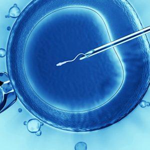 Беременность икси