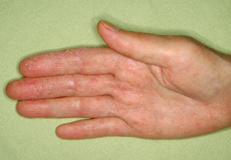Нейродермит признаки лечение