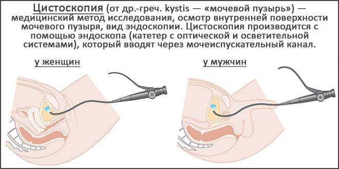 как делают цистоскопию мочевого пузыря