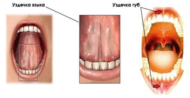 Уздечка на нижней губе воспаление