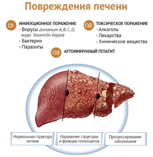 Особенности аллергии на алкоголь и помощь при ней