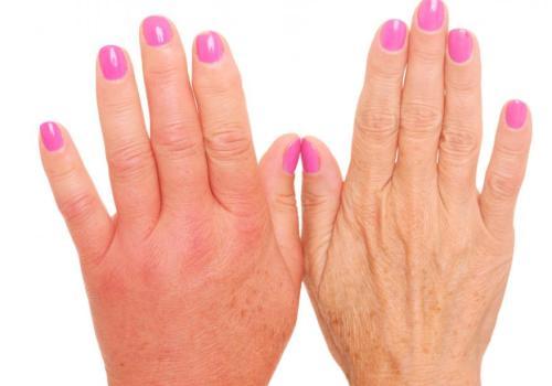 От чего отекают пальцы на руках и болят суставы лфк коленного сустава комплекс упражнений
