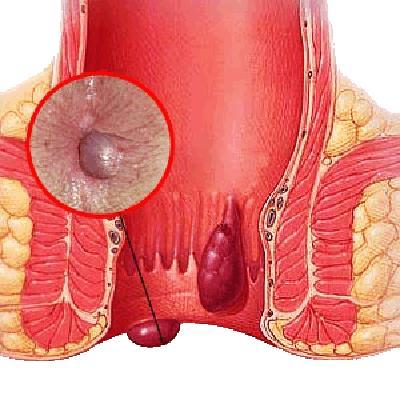 Фото раковой опухоли в анальном проходе