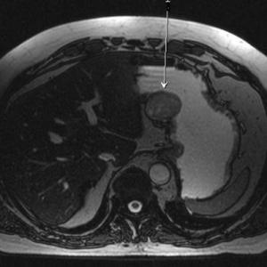 Лейомиома антрального отдела желудка