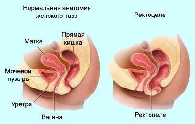Опухоль прямой кишки мешает сексу
