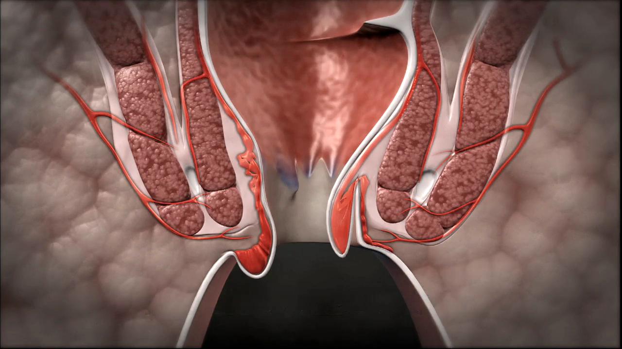 Повреждения зоны ануса при сексе