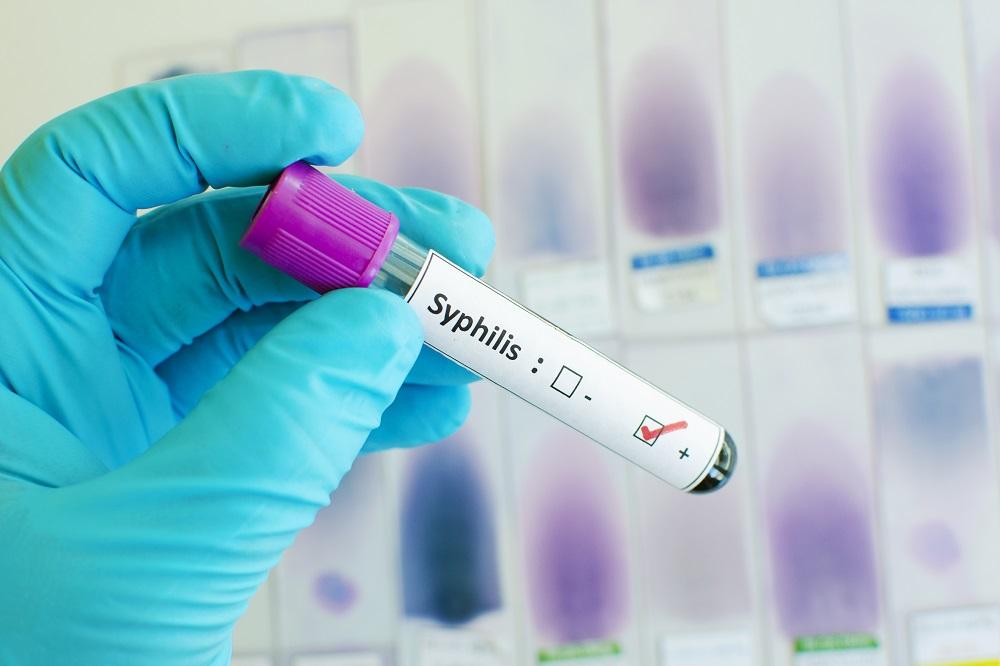 какие анализы назначает венеролог на сифилис