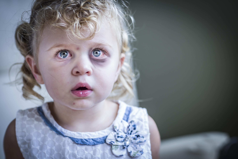 белый прыщик на щеке у ребенка фото
