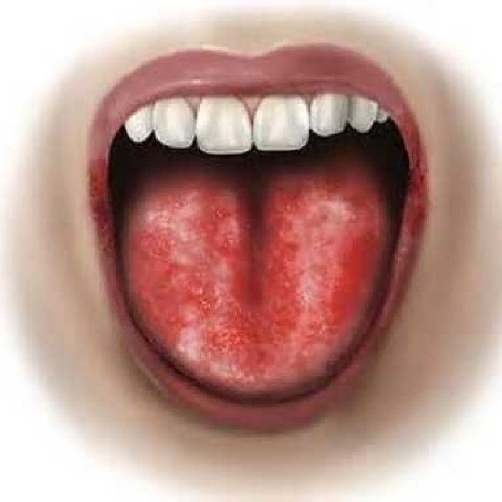 Смотреть Ребенок прикусил язык: как остановить кровотечение видео
