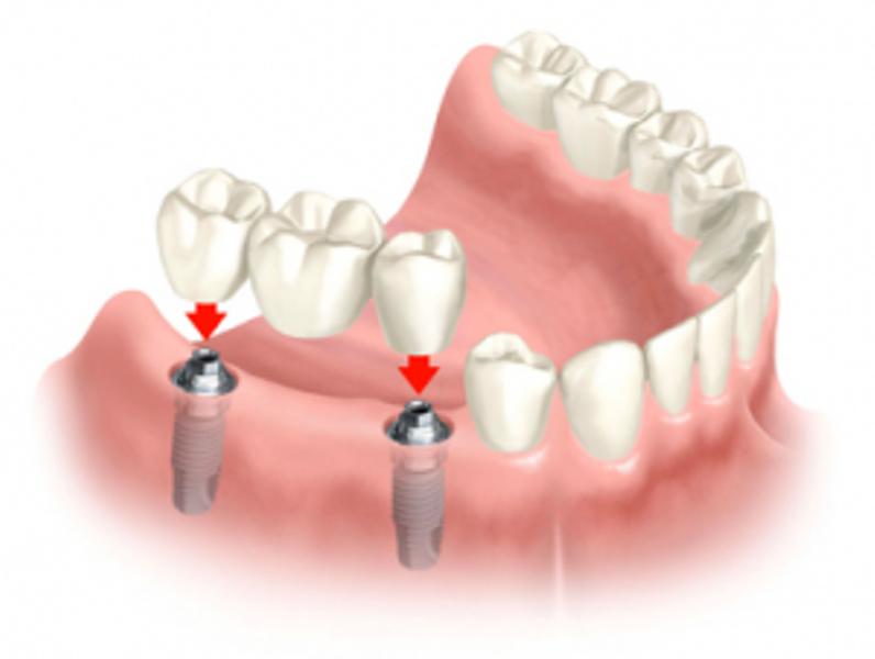Требования к препарированным опорным зубам паяного мостовидного протеза