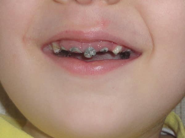 Инфекционный мононуклеоз у детей фото сыпи