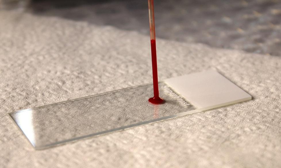 Как сделать мазок крови на стекло