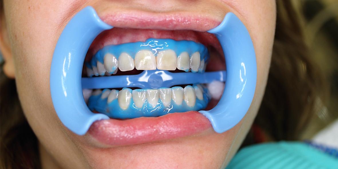химическое отбеливание зубов отзывы
