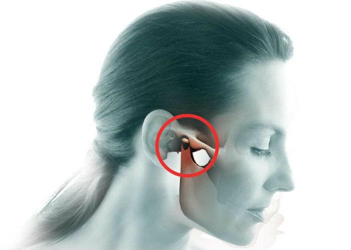 Артрит височночелюстного сустава боли в суставах врачей 5 октября