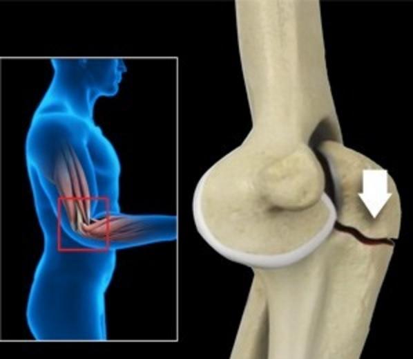 Контрактуру локтевого сустава воспаление суставов у детей