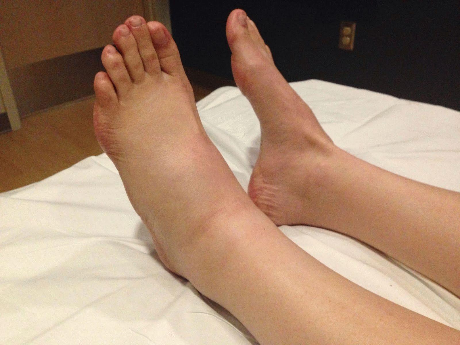 Симптоматика опухолей различного генеза в частности голеностопного сустава топография лучезапястный сустав кисть