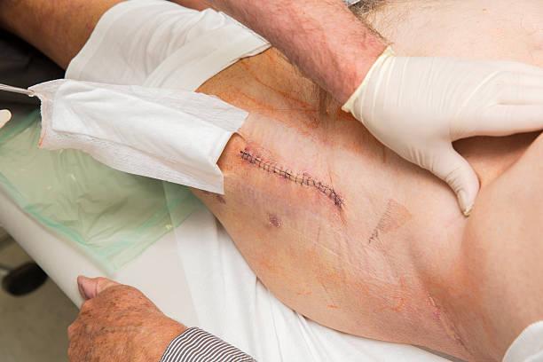 Осложнения после эндопротезирования тазобедренного сустава парапротезная инфекция острый ревматизм коленных суставов
