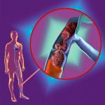 Какие продукты понижают гемоглобин в крови: причины повышения гемоглобина и принципы диетического питания для снижения уровня гемоглобина